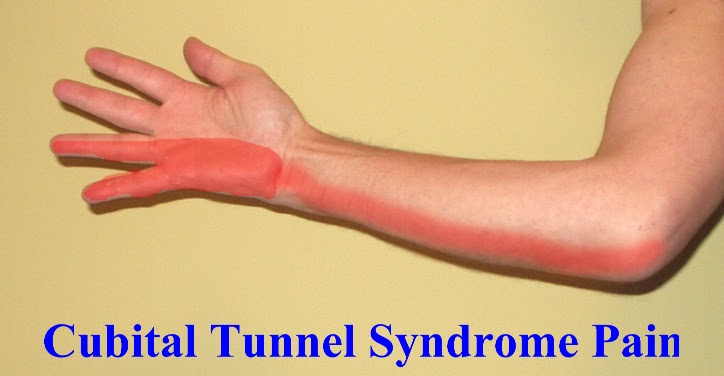 Carpal Tunnel Syndrome Treatment forecasting