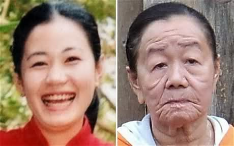 23-Years-Old Vietnamese Woman Ages 50 Years In 'A Few Days'