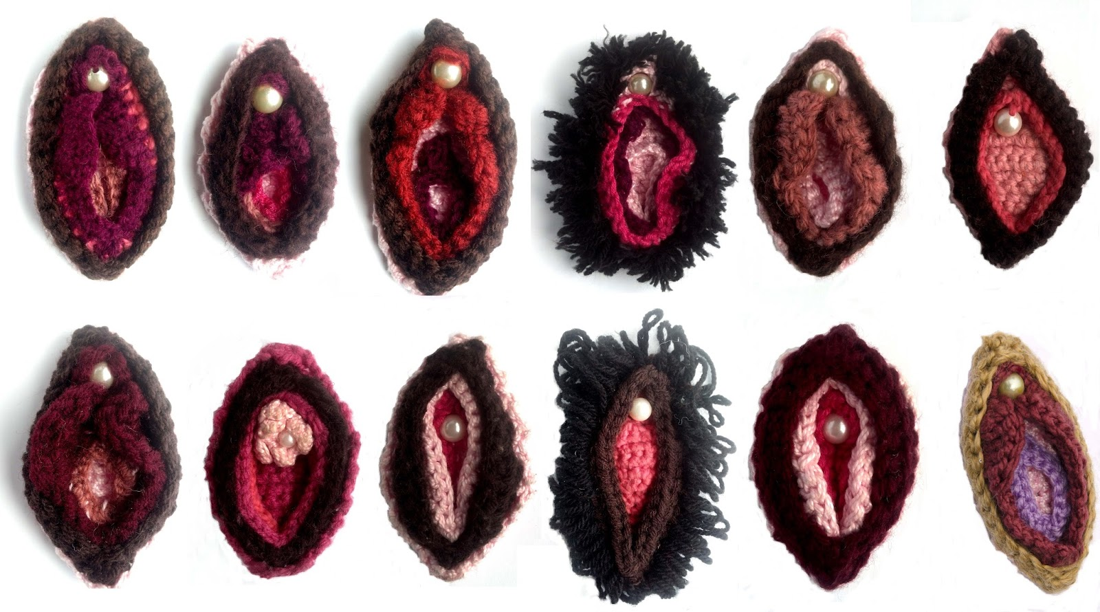 My vulva is