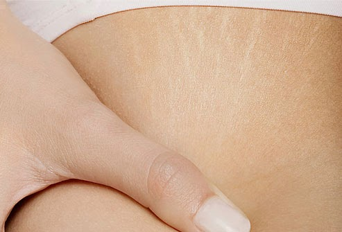 How to get rid of stretch marks on the skin