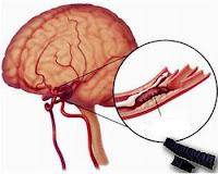 Личностни промени при мозъчна атеросклероза