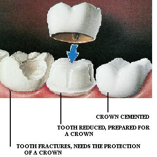 cracked tooth syndrome crown
