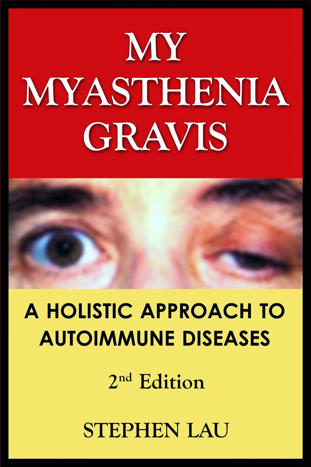 <b>My Myasthenia Gravis</b> - 2nd Edition