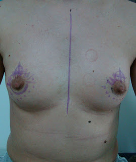 Appearance before surgery
