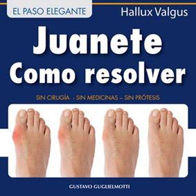 Juanete - Solución definitiva