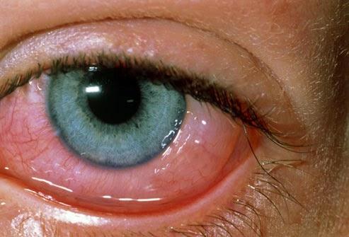 Obat Tradisional Untuk Mencegah dan Mengobati Mata Berair