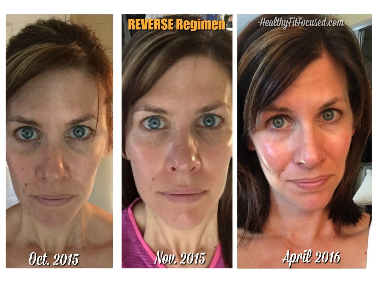 rodan fields reverse regimen results julie little anti aging skin care