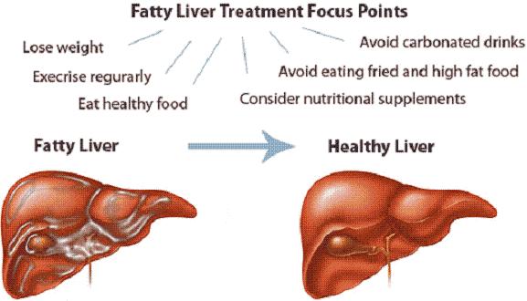 symptoms of kidney disease in children