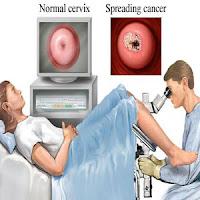 Colposcopy มะเร็งปากมดลูก