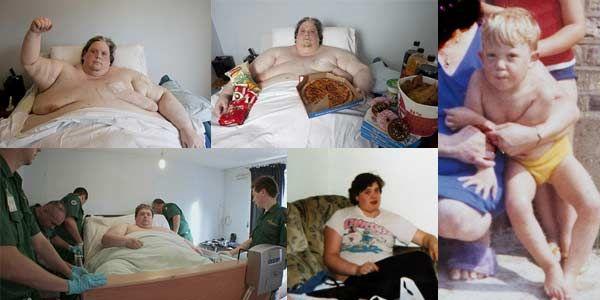 Pria Tergemuk 11 Tahun Terkurung Di Rumah [ www.BlogApaAja.com ]
