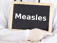 Measles: A Rash of Misinformation Measles_health_issues+copy%281%29
