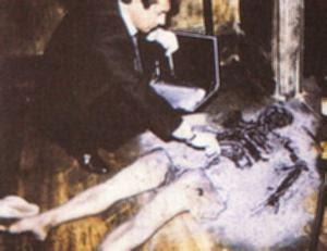 combustão espontanea humana, só restaram as pernas