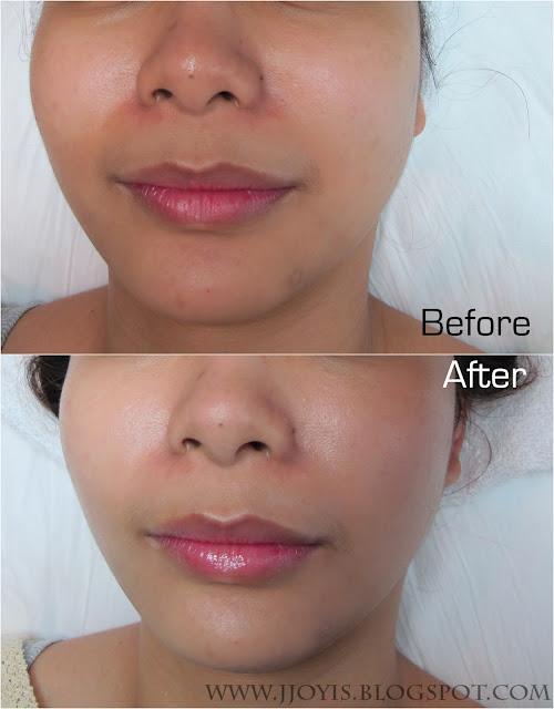 skin shape club results