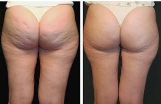 carboxiterapia-carbox-antes-e-depois-corpo-bumbum-celulite-corpo-beleza-tratamento-estetico-estetica