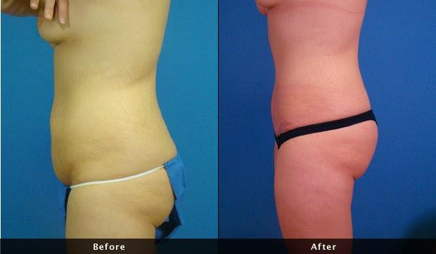 Fotos Antes e Depois Abdominoplastia