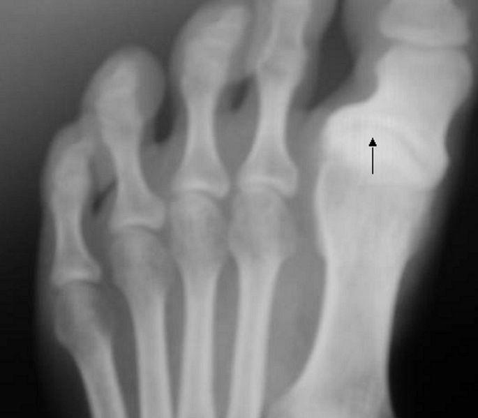 Medi Photos: Hallux varus in X-ray