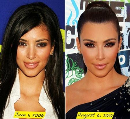 Kim Kardashian: Antes y después