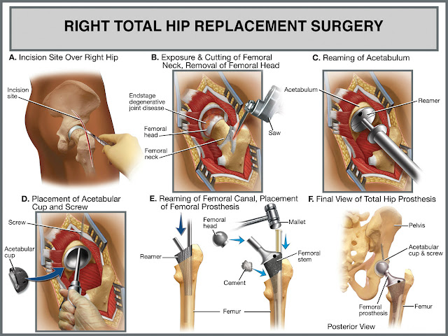 http://orthopedicsindia.com/hip-replacements-ceramic-type-implants.html