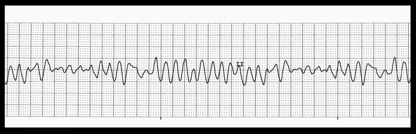 Pin Polymorphic Ventricular Tachycardia Torsades De ...