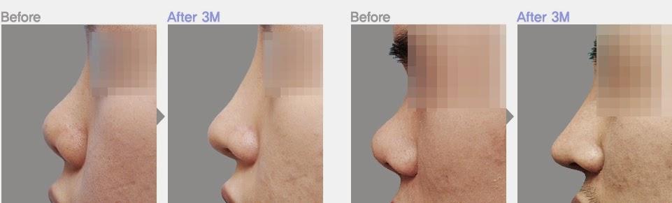 Foto sebelum dan sesudah operasi plastik hidung pesek di Bedah Plastik Wonjin-1