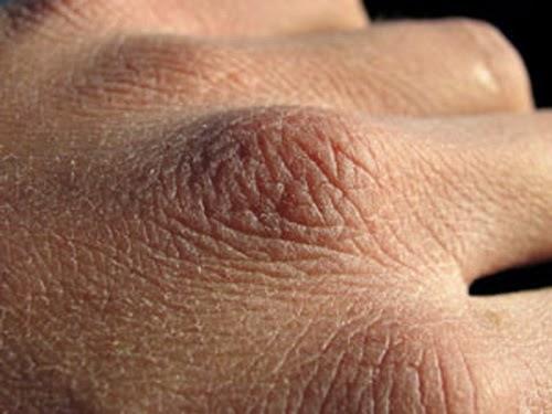 penyebab kulit kering dan gatal kusam bersisik
