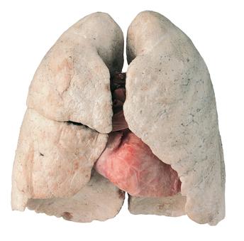 Polmoni sani di un non fumatore plastinazione