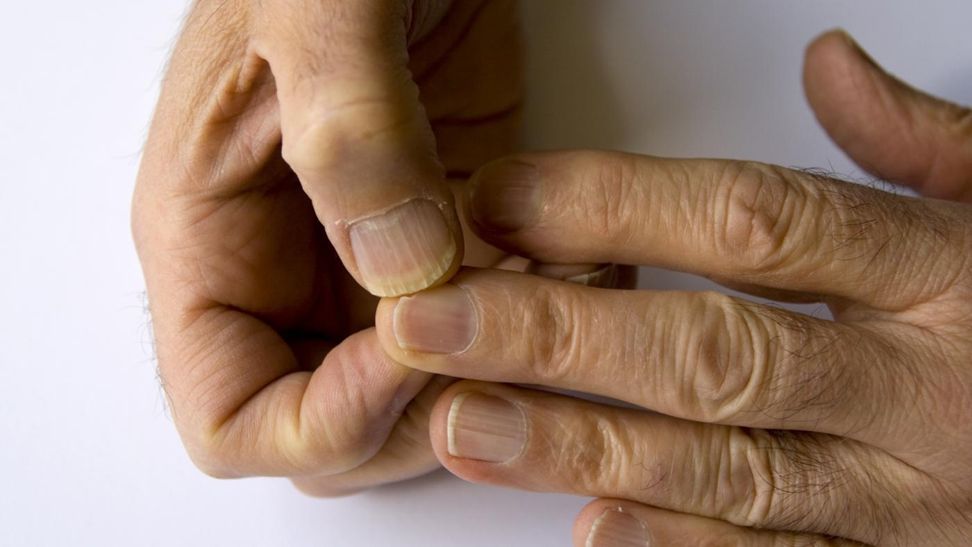 Onychoschizia on the hands; vitamin deficiency B12 Deficiency Nails