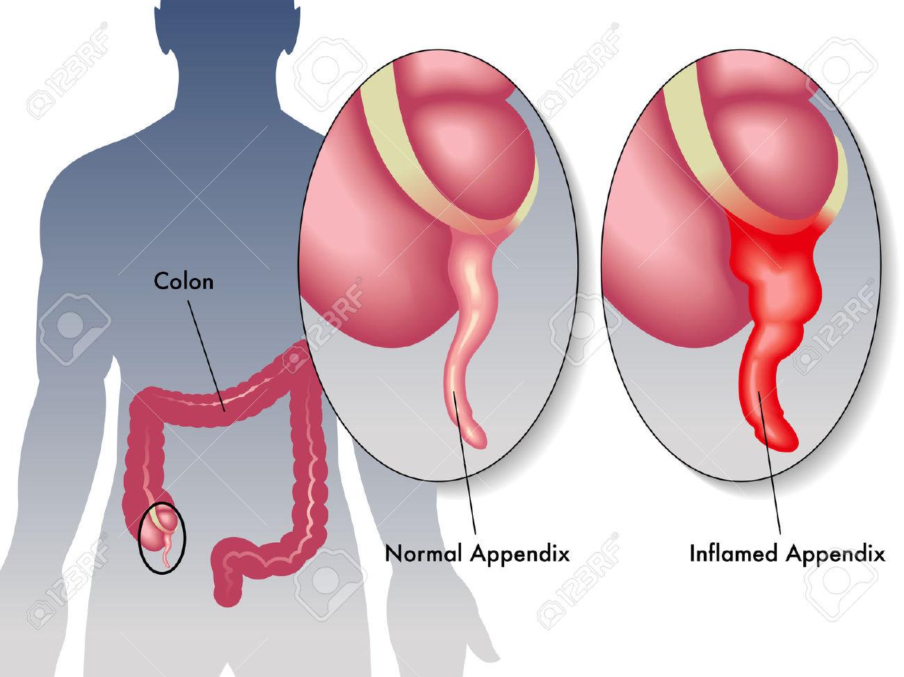 Salud Cotidiana: Apendicitis