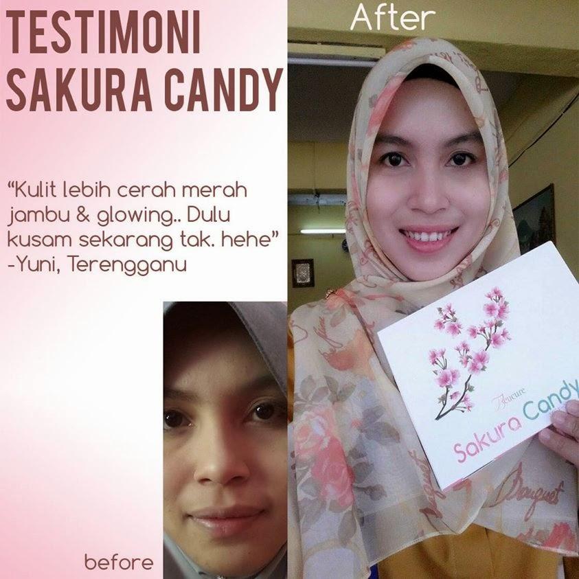 testimoni beucure sakura candy, rahsia cantik gadis jepun, cantik dengan sakura candy