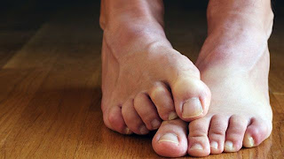 Restless Leg Syndrome Treatment, RLS,