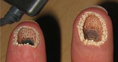 lamprey disease pics