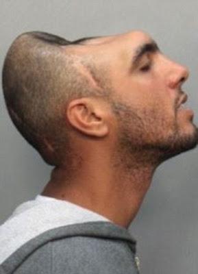 man-half-head