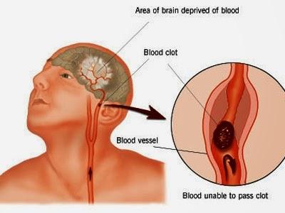 The symptoms of cerebral vascular accident
