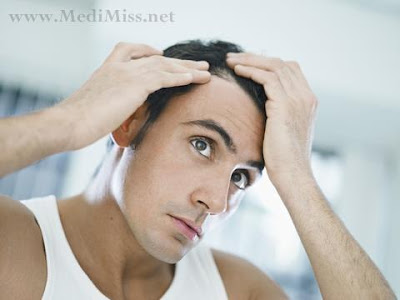 Tips to Prevent Hair-Loss.