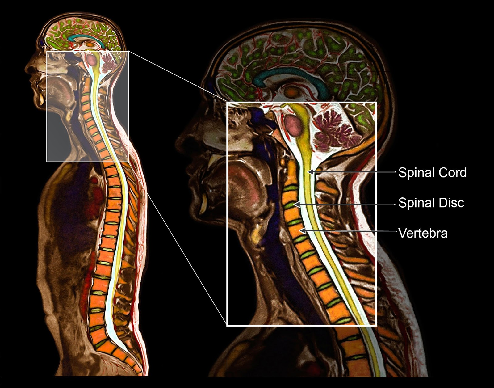 Medical Media Images Blog What Is A Neck Fusion Surgery Shown And