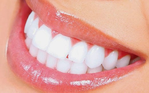 Kumpulan Tips Kesehatan Dan Kecantikan Cara Memutihkan Gigi