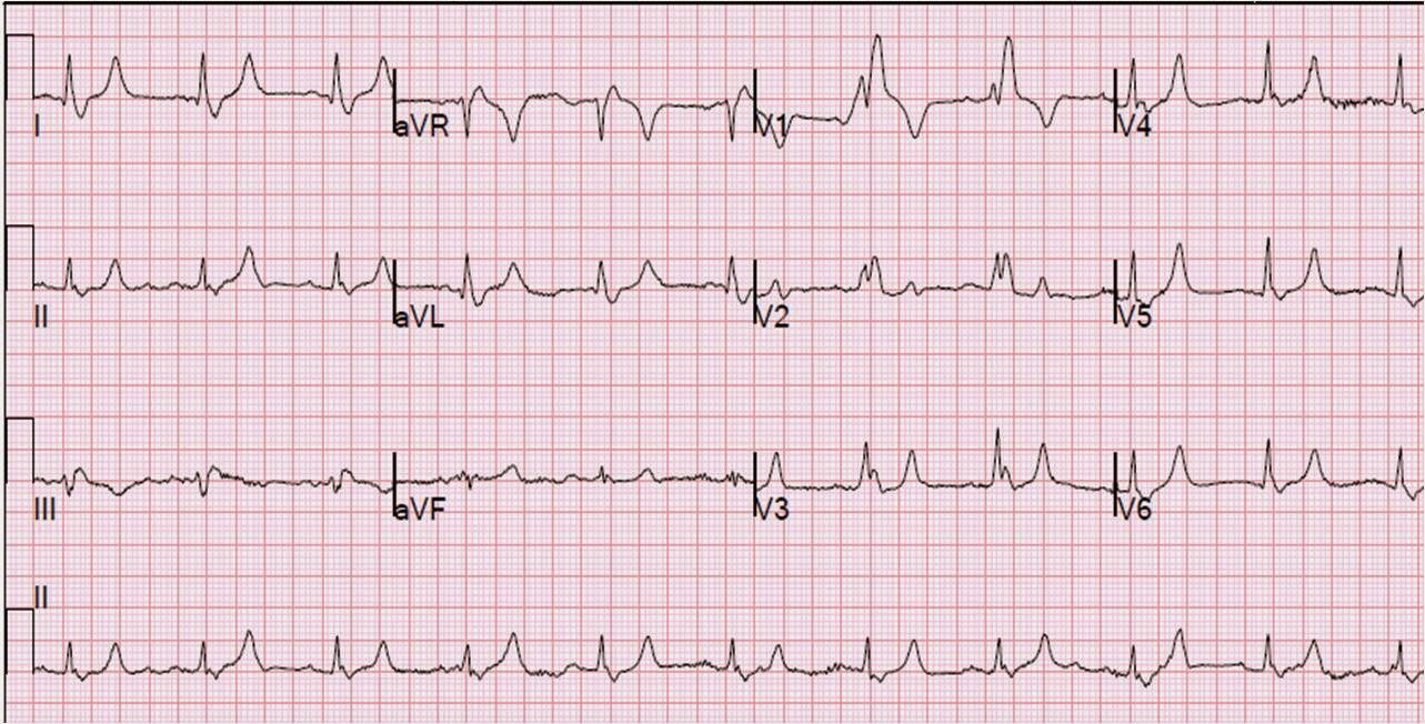Dr. Smith's ECG Blog: Is This a Simple Right Bundle Branch Block?
