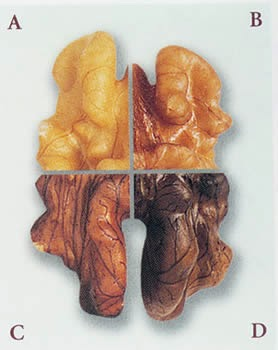 Healthy Food - Walnut