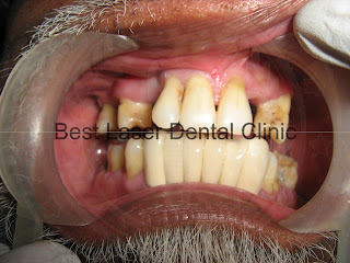 All upper teeth replacement with basal implants which is better than zygoma implants