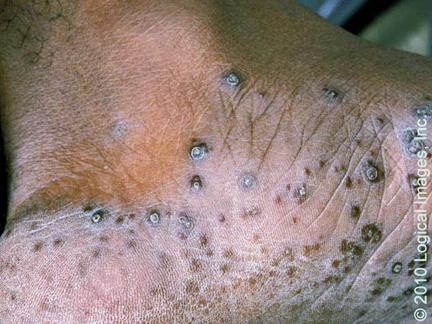 No alérgeno atopichesky la dermatitis