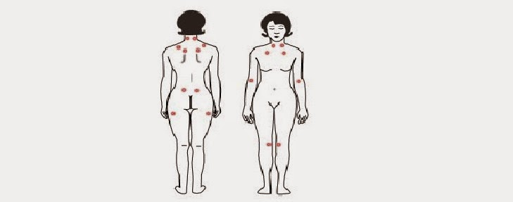 Gejala Penyebab dan Cara Mengatasi Penyakit Fibromyalgia