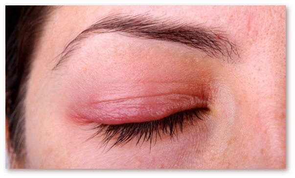 Exemplu de blefarita