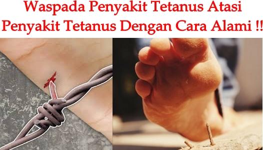 Obat Tradisional Tetanus