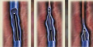 Como se hace la cirugia para varices con laser