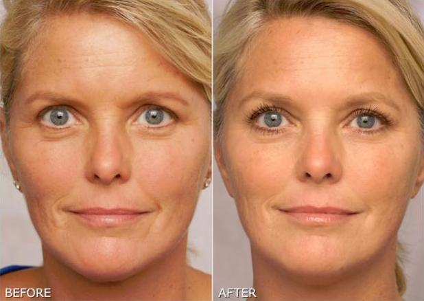 Retin a tretinoin): side effects of cream for wrinkles