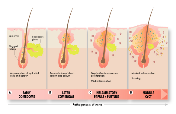 The Symptoms and Treatments of Acne Vulgaris