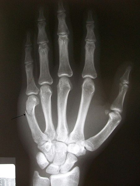 Rhoda's CT/MRI Procedures II: Boxer's fracture