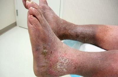 dermatitis on leg #10