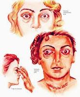 Cara Mengobati penyakit Hipertiroid Secara Tradisional