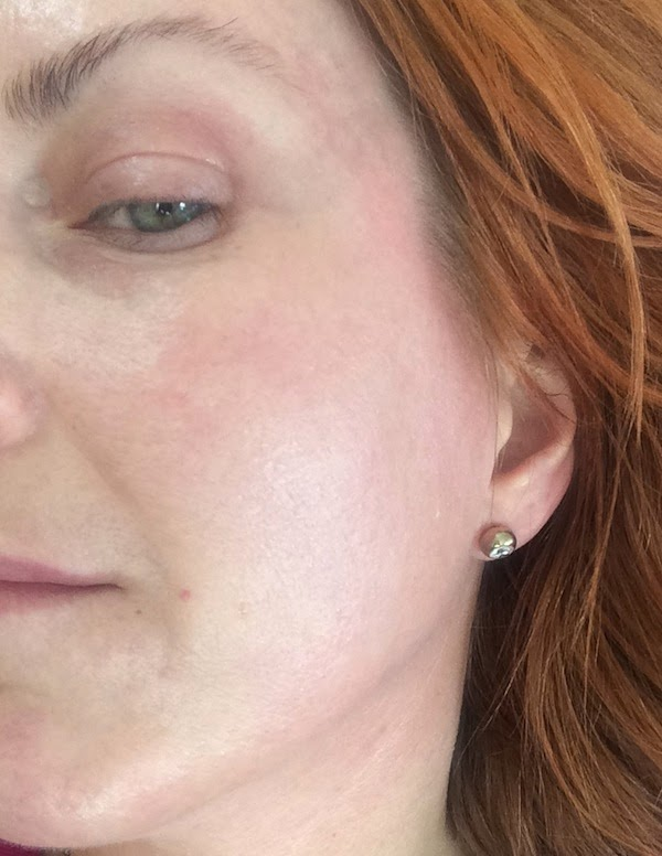 akademikliniken cure recovery cream